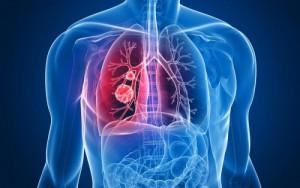 Ποιες είναι οι πιο θανατηφόρες μορφές καρκίνου (photo)