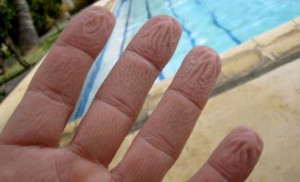 Ξέρετε γιατί ζαρώνουν τα δάκτυλά μας μέσα στο νερό;