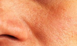 Αυτές οι συνήθειες φράζουν τους πόρους του δέρματος...