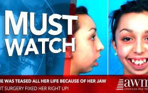 Την κοροϊδεύανε σε όλη της τη ζωή για τα δόντια της! Μετά το χειρουργείο, πήρε την πιο γλυκιά εκδίκηση (video)
