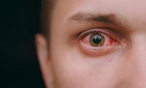 Ο πόνος στο μάτι δεν ήταν αθώος - Δεν πίστευαν οι γιατροί αυτό που ανακάλυψαν