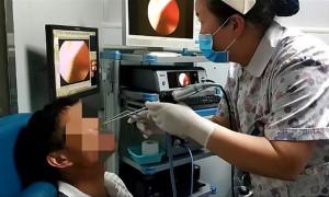 Πήγε στο νοσοκομείο με αιμορραγία στη μύτη και οι γιατροί έπαθαν ΣΟΚ με αυτό που ανακάλυψαν (photos)