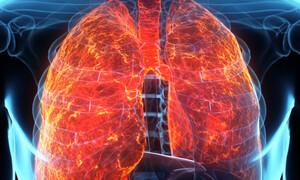 Υγρό στους πνεύμονες: Τα ανησυχητικά συμπτώματα (photos)